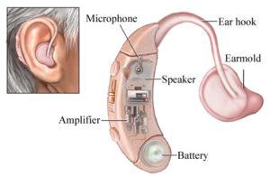 Hearing Misfortune